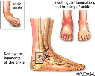 inversion ankle sprain. Ankle sprains or low-grade