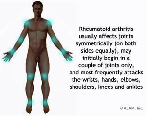 rheumatoid arthritis full body